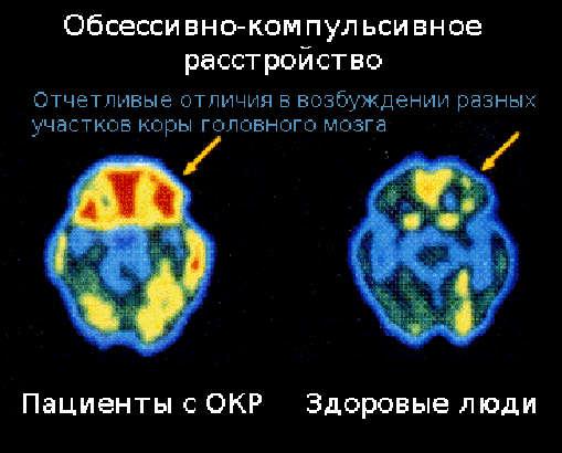 Результаты сканирования мозга пациентов с ОКР.