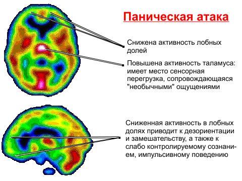 Процессы в головном мозге при панической атаке