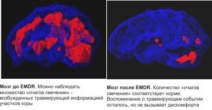 МРТ мозга до и после EMDR-терапии