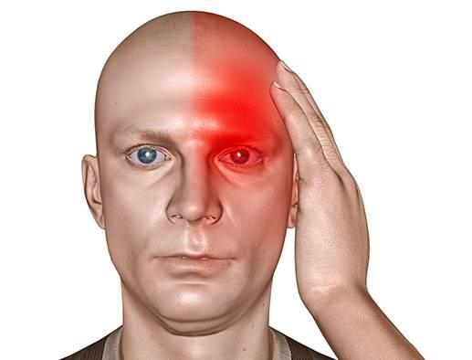 Мигрень при ВСД
