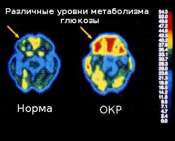 Метаболизм глюкозы в мозге при ОКР значительно выше, чем в норме.