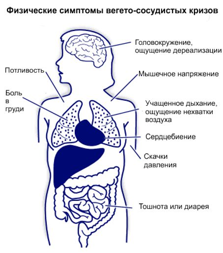 физические симптомы, сопровождающие течение вегетососудистого криза