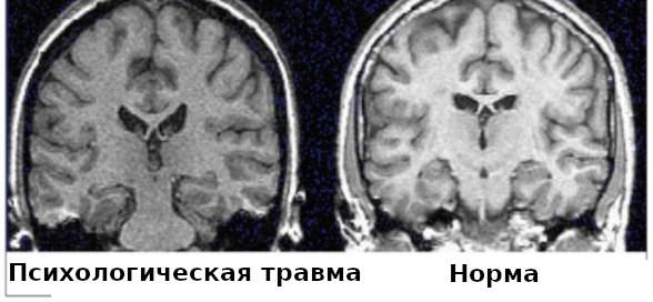Результаты сканирования мозга.