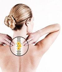 Остеохндроз шейно-грудного отдела