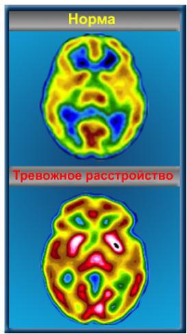 Тревога и мозг.